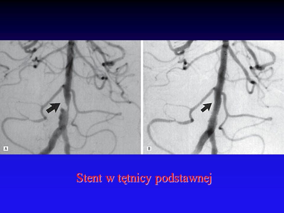 Stent w tętnicy podstawnej
