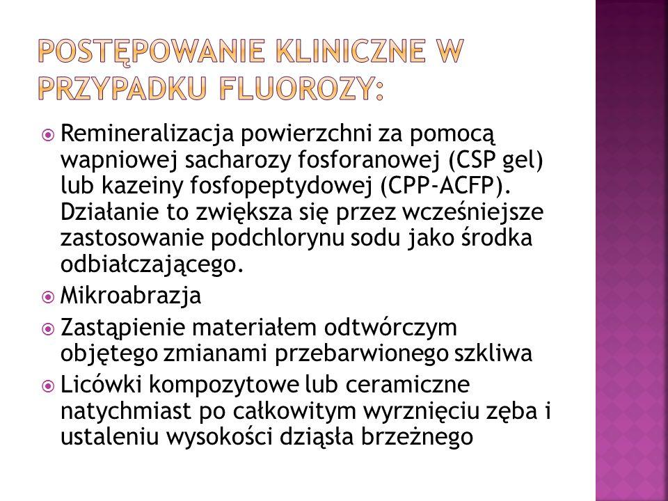 Postępowanie kliniczne w przypadku fluorozy: