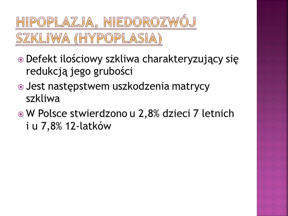 Hipoplazja, niedorozwój szkliwa (hypoplasia)