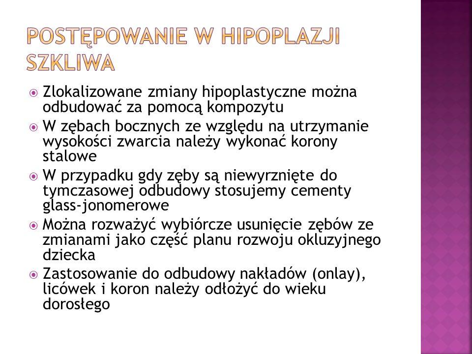 Postępowanie w hipoplazji szkliwa