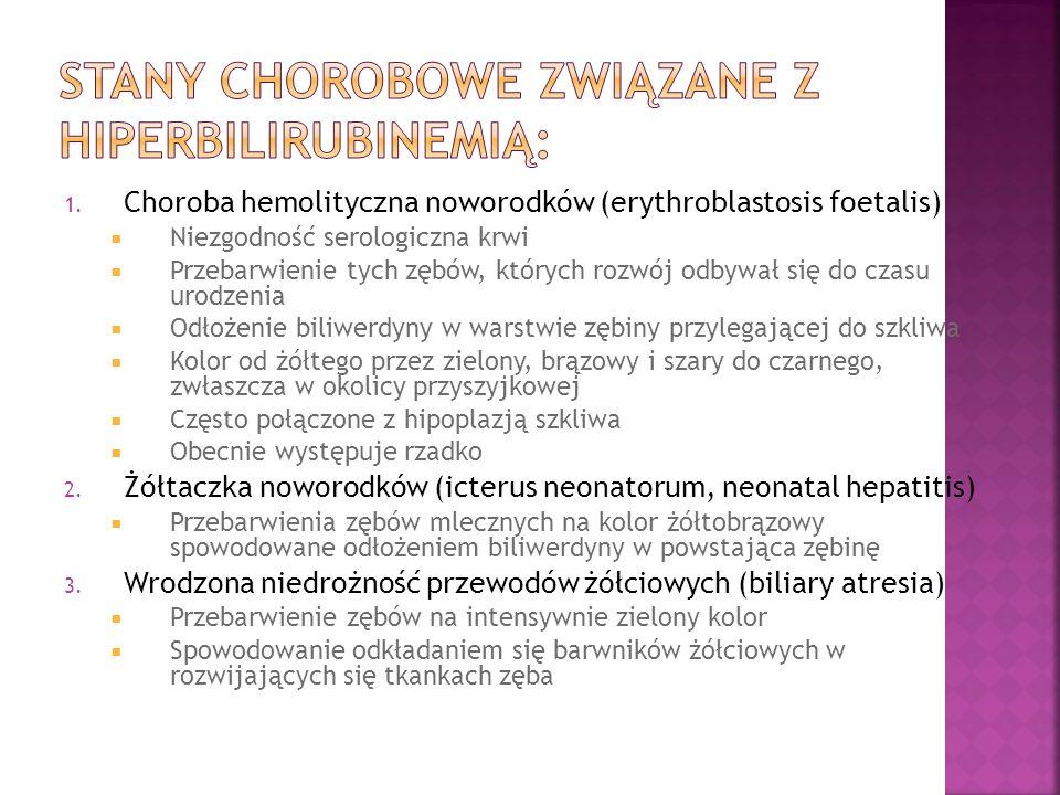 Stany chorobowe związane z hiperbilirubinemią:
