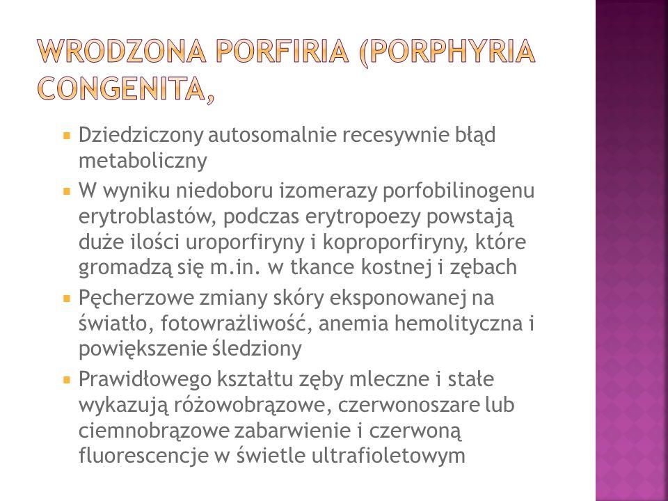 Wrodzona porfiria (porphyria congenita,