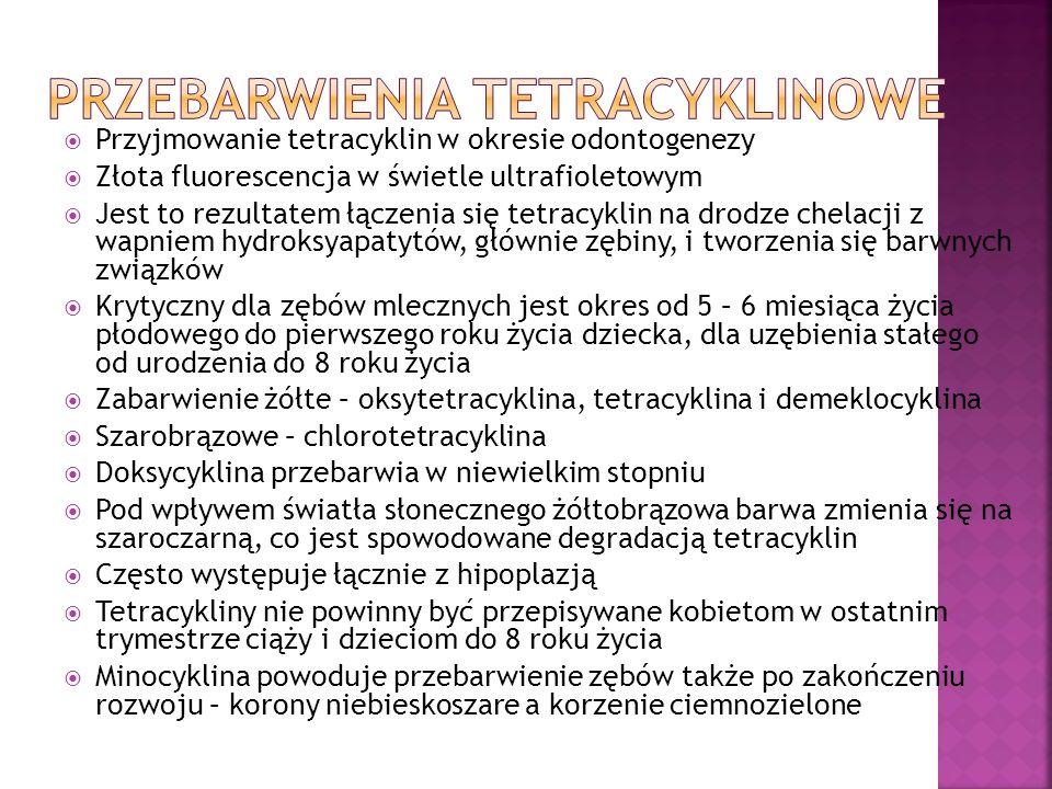 Przebarwienia tetracyklinowe