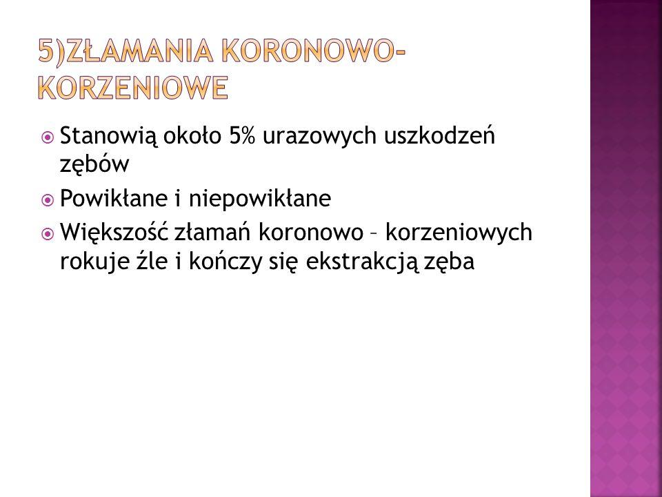 5)Złamania koronowo-korzeniowe