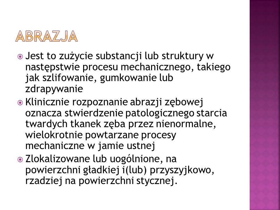 ABRAZJA Jest to zużycie substancji lub struktury w następstwie procesu mechanicznego, takiego jak szlifowanie, gumkowanie lub zdrapywanie.