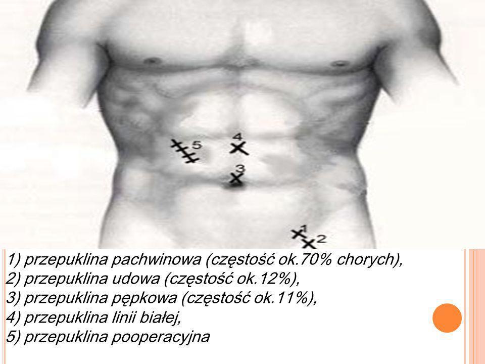 1) przepuklina pachwinowa (częstość ok
