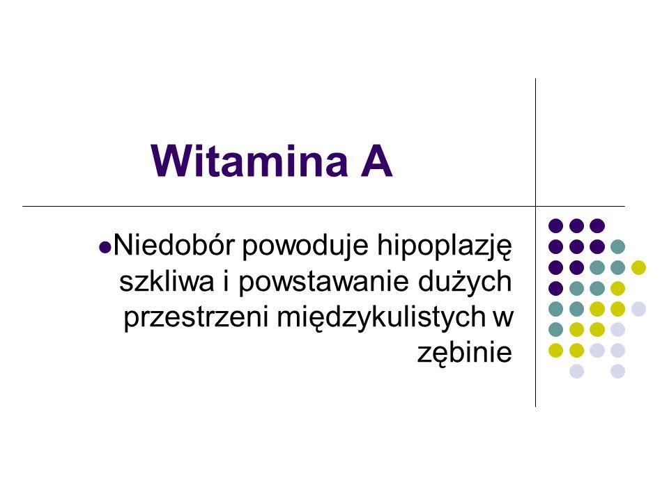 Witamina A Niedobór powoduje hipoplazję szkliwa i powstawanie dużych przestrzeni międzykulistych w zębinie.