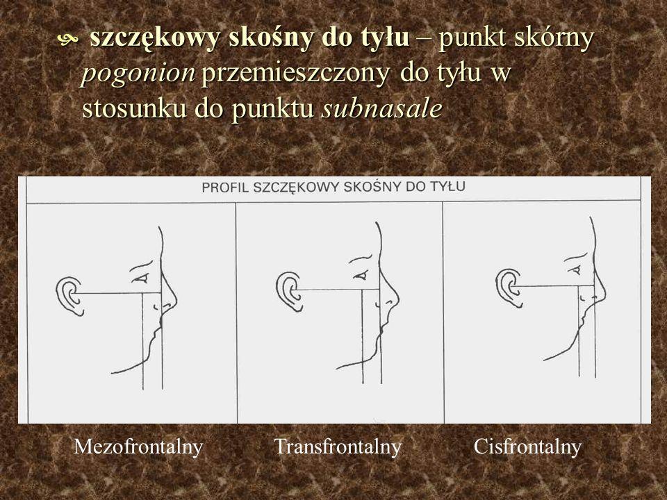 szczękowy skośny do tyłu – punkt skórny pogonion przemieszczony do tyłu w stosunku do punktu subnasale