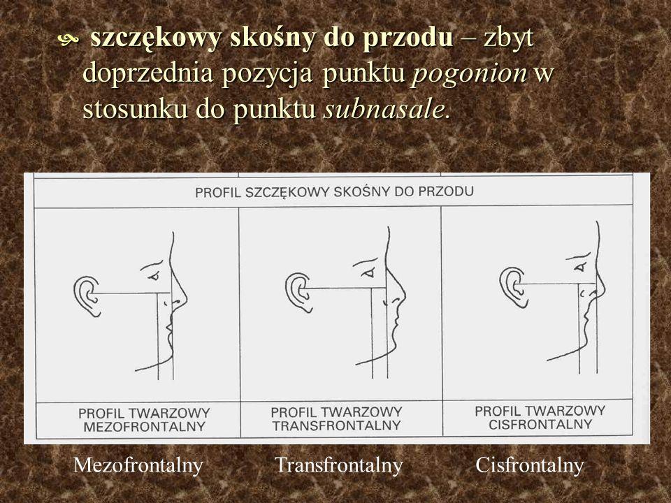 szczękowy skośny do przodu – zbyt doprzednia pozycja punktu pogonion w stosunku do punktu subnasale.