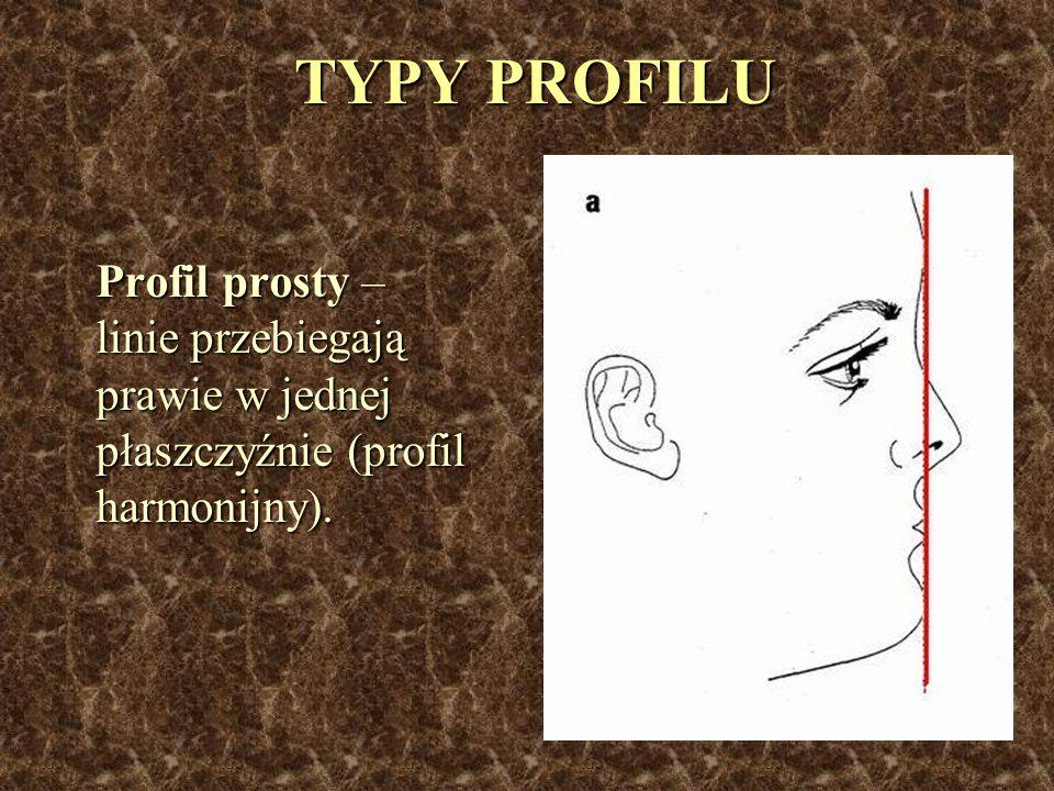 TYPY PROFILU Profil prosty – linie przebiegają prawie w jednej płaszczyźnie (profil harmonijny).