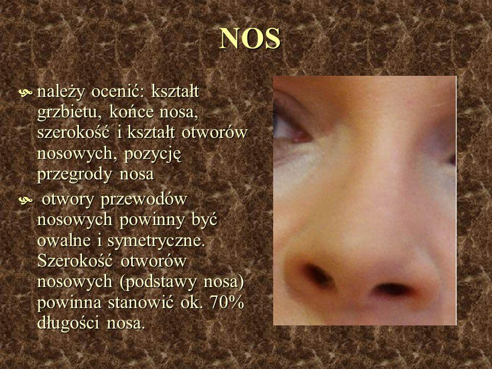 NOS należy ocenić: kształt grzbietu, końce nosa, szerokość i kształt otworów nosowych, pozycję przegrody nosa.