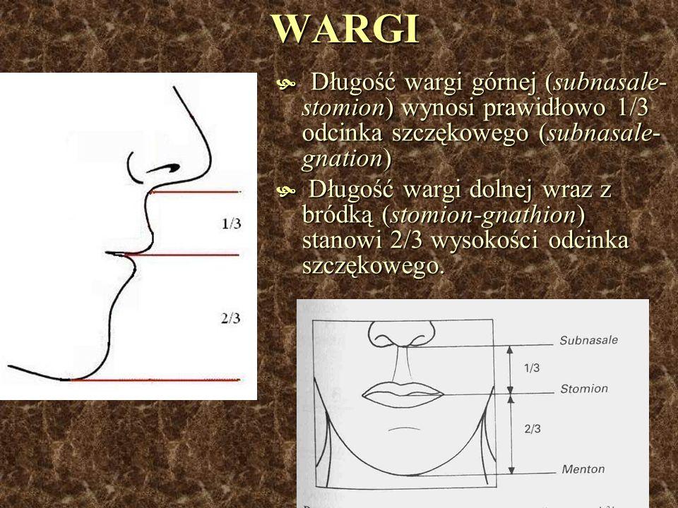 WARGI Długość wargi górnej (subnasale-stomion) wynosi prawidłowo 1/3 odcinka szczękowego (subnasale-gnation)