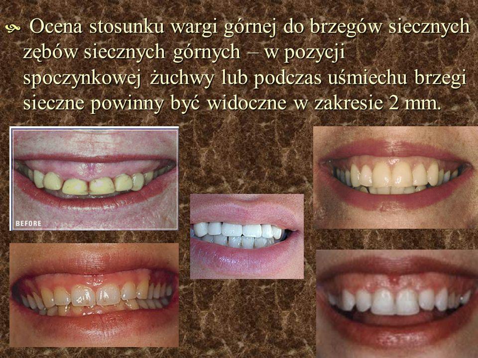 Ocena stosunku wargi górnej do brzegów siecznych zębów siecznych górnych – w pozycji spoczynkowej żuchwy lub podczas uśmiechu brzegi sieczne powinny być widoczne w zakresie 2 mm.