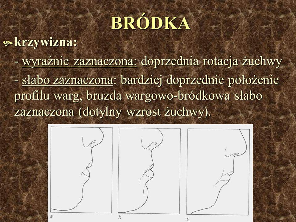BRÓDKA krzywizna: - wyraźnie zaznaczona: doprzednia rotacja żuchwy
