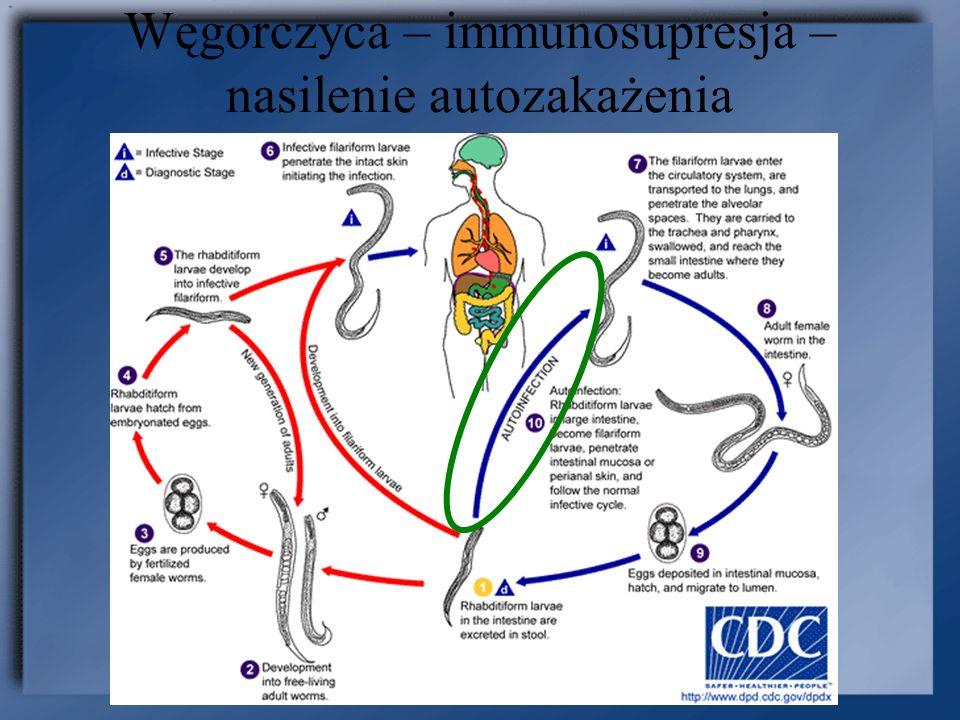 Węgorczyca – immunosupresja – nasilenie autozakażenia