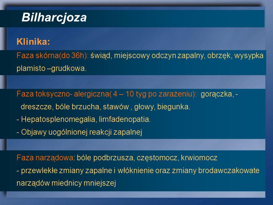 Bilharcjoza