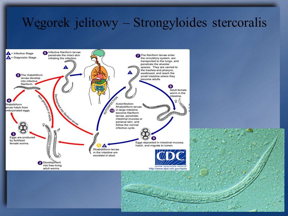 Węgorek jelitowy – Strongyloides stercoralis