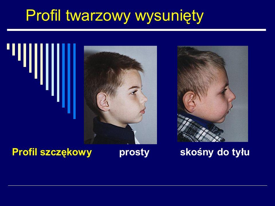 Profil twarzowy wysunięty