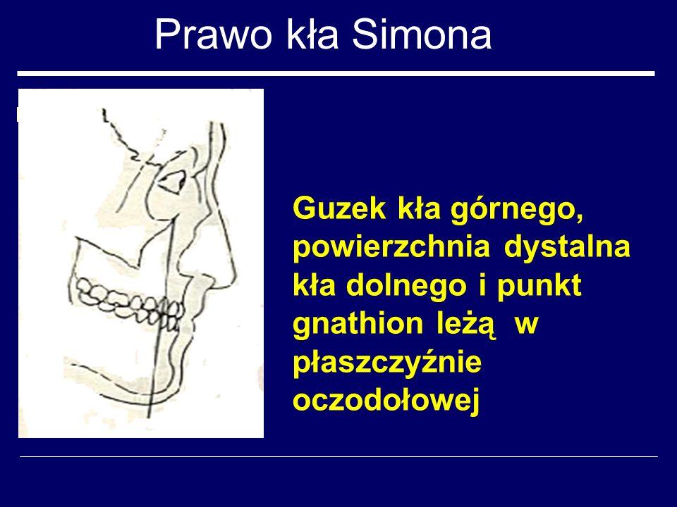 Prawo kła Simona Guzek kła górnego, powierzchnia dystalna kła dolnego i punkt gnathion leżą w płaszczyźnie oczodołowej.