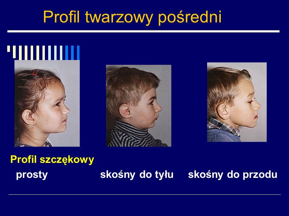 Profil twarzowy pośredni