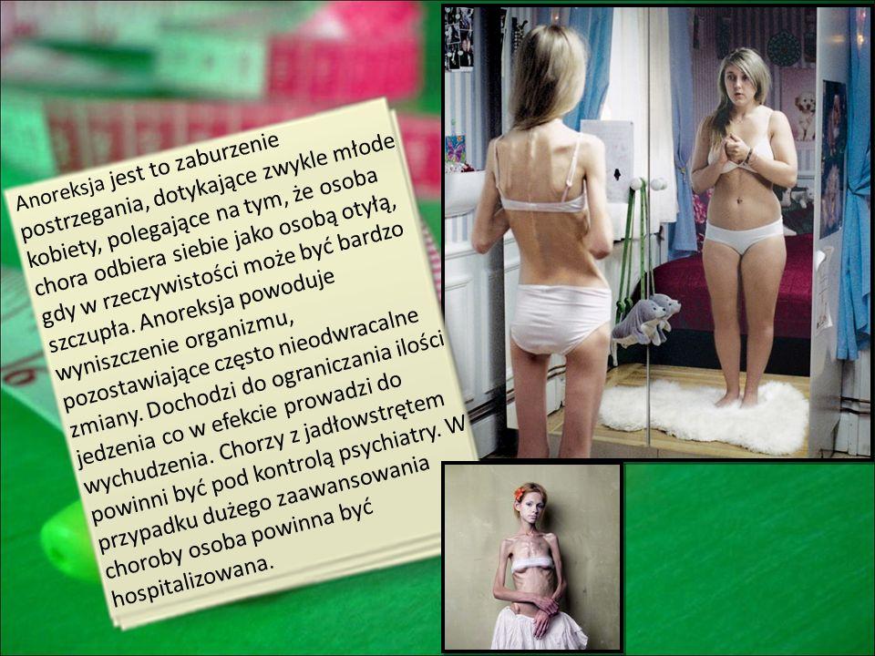 Anoreksja jest to zaburzenie postrzegania, dotykające zwykle młode kobiety, polegające na tym, że osoba chora odbiera siebie jako osobą otyłą, gdy w rzeczywistości może być bardzo szczupła. Anoreksja powoduje wyniszczenie organizmu, pozostawiające często nieodwracalne zmiany. Dochodzi do ograniczania ilości jedzenia co w efekcie prowadzi do wychudzenia. Chorzy z jadłowstrętem powinni być pod kontrolą psychiatry. W przypadku dużego zaawansowania choroby osoba powinna być hospitalizowana.
