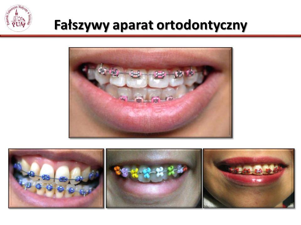 Fałszywy aparat ortodontyczny