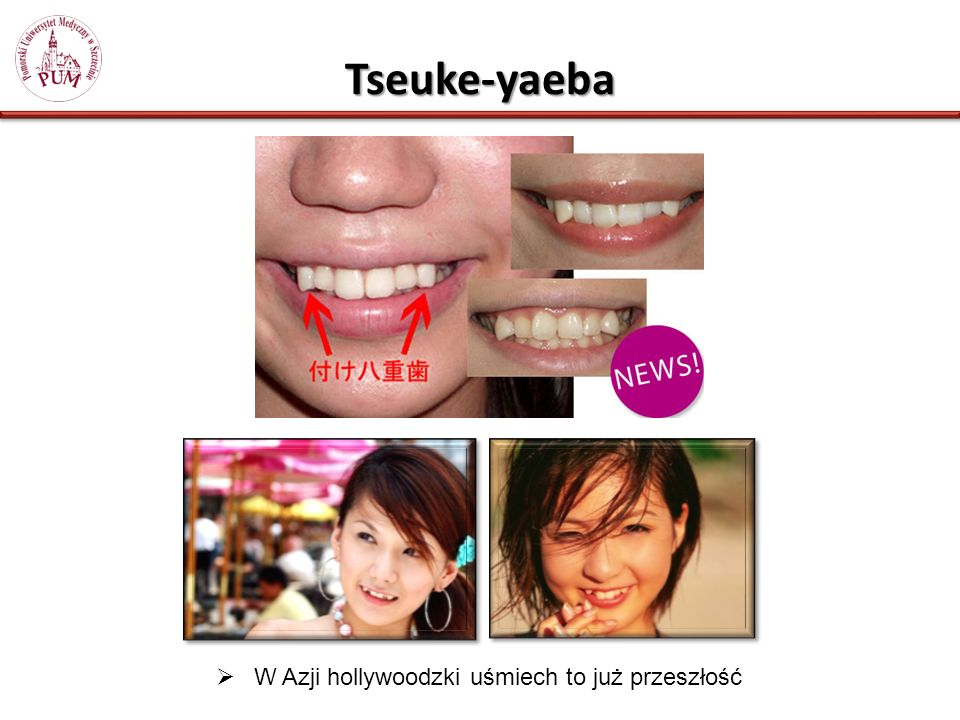 Tseuke-yaeba W Azji hollywoodzki uśmiech to już przeszłość