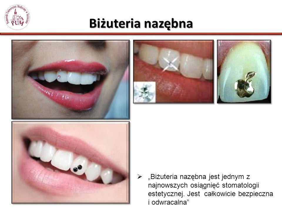 """Biżuteria nazębna """"Biżuteria nazębna jest jednym z najnowszych osiągnięć stomatologii estetycznej."""