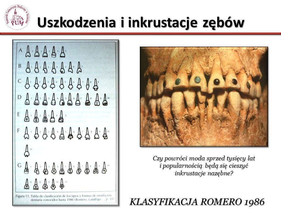 Uszkodzenia i inkrustacje zębów