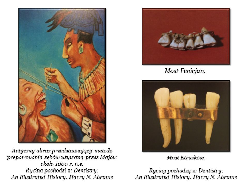 Ryciny pochodzą z: Dentistry: An Illustrated History. Harry N. Abrams