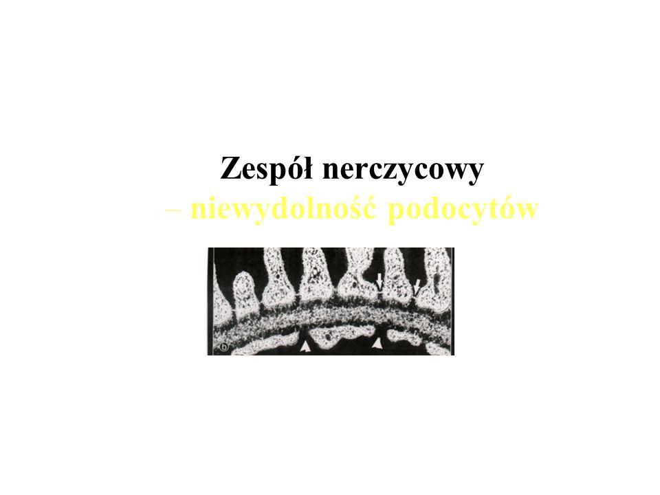 Zespół nerczycowy – niewydolność podocytów