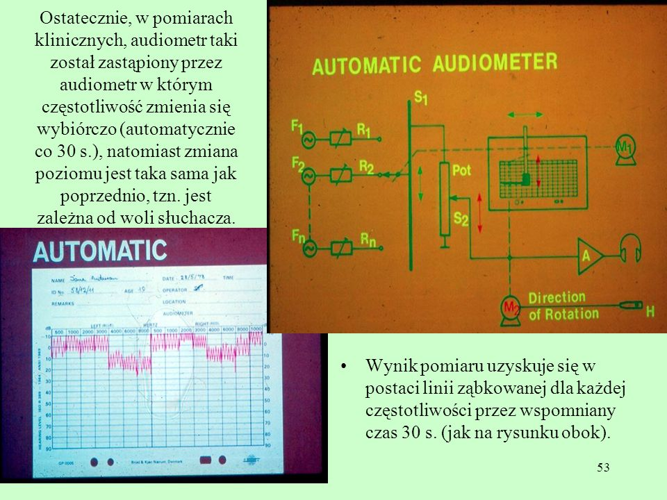 Ostatecznie, w pomiarach klinicznych, audiometr taki został zastąpiony przez audiometr w którym częstotliwość zmienia się wybiórczo (automatycznie co 30 s.), natomiast zmiana poziomu jest taka sama jak poprzednio, tzn. jest zależna od woli słuchacza.