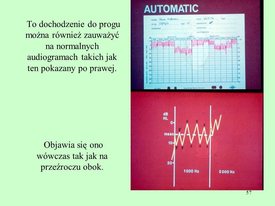 To dochodzenie do progu można również zauważyć na normalnych audiogramach takich jak ten pokazany po prawej.