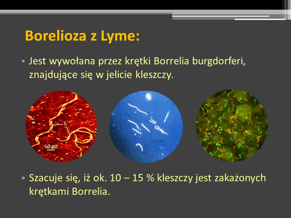 Borelioza z Lyme:Jest wywołana przez krętki Borrelia burgdorferi, znajdujące się w jelicie kleszczy.