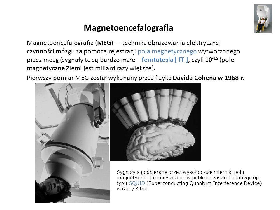 Magnetoencefalografia