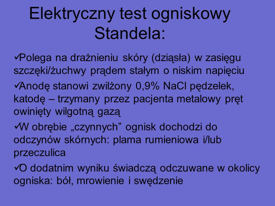 Elektryczny test ogniskowy Standela: