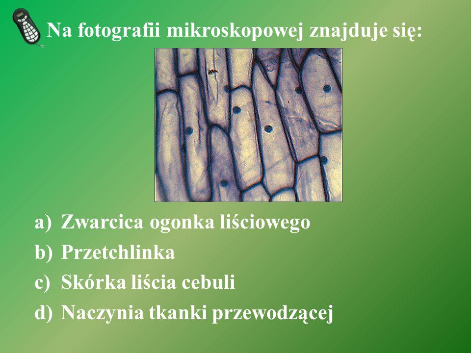 Na fotografii mikroskopowej znajduje się:
