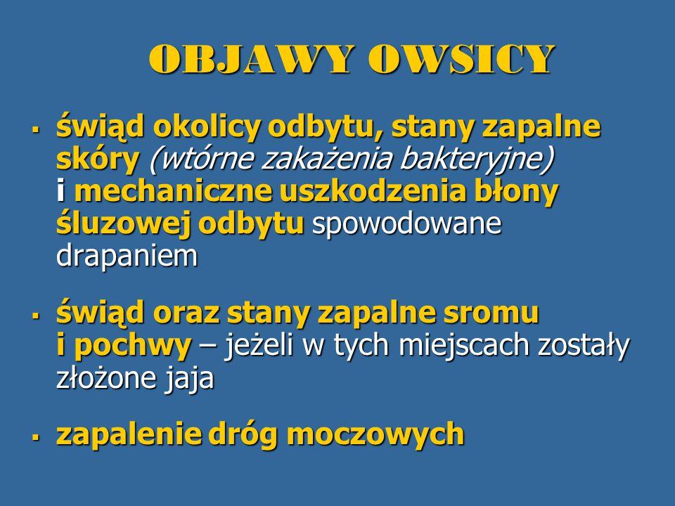OBJAWY OWSICY