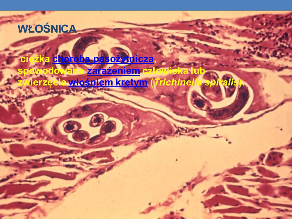 Włośnica ciężka choroba pasożytnicza, spowodowana zarażeniem człowieka lub zwierzęcia włośniem krętym (Trichinella spiralis).