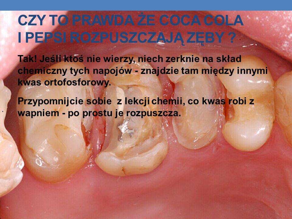 Czy to prawda że coca cola i pepsi rozpuszczają zęby