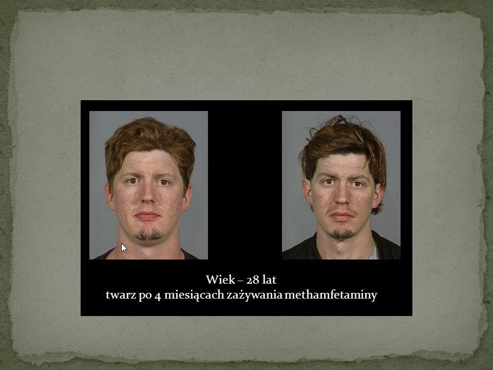 Wiek – 28 lat twarz po 4 miesiącach zażywania methamfetaminy