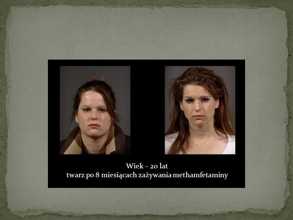 Wiek – 20 lat twarz po 8 miesiącach zażywania methamfetaminy