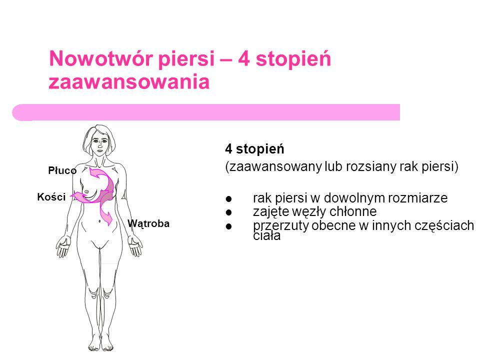 Nowotwór piersi – 4 stopień zaawansowania