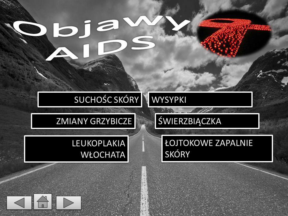 Objawy AIDS SUCHOŚC SKÓRY WYSYPKI ZMIANY GRZYBICZE ŚWIERZBIĄCZKA