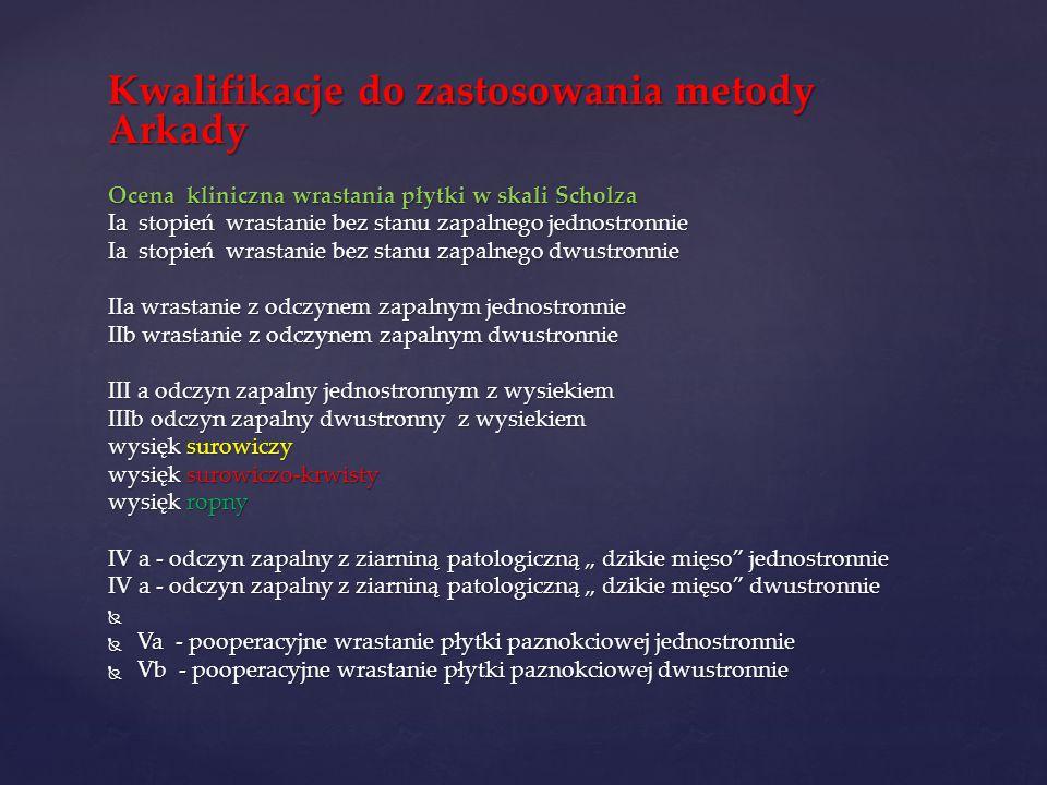 Kwalifikacje do zastosowania metody Arkady