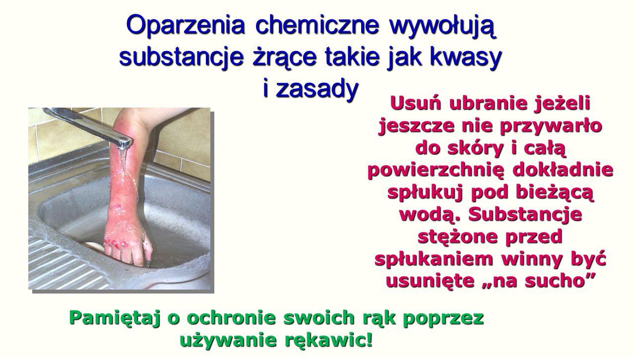 Oparzenia chemiczne wywołują substancje żrące takie jak kwasy i zasady