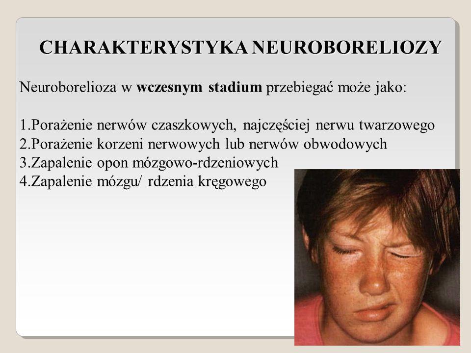 CHARAKTERYSTYKA NEUROBORELIOZY Neuroborelioza w wczesnym stadium przebiegać może jako: