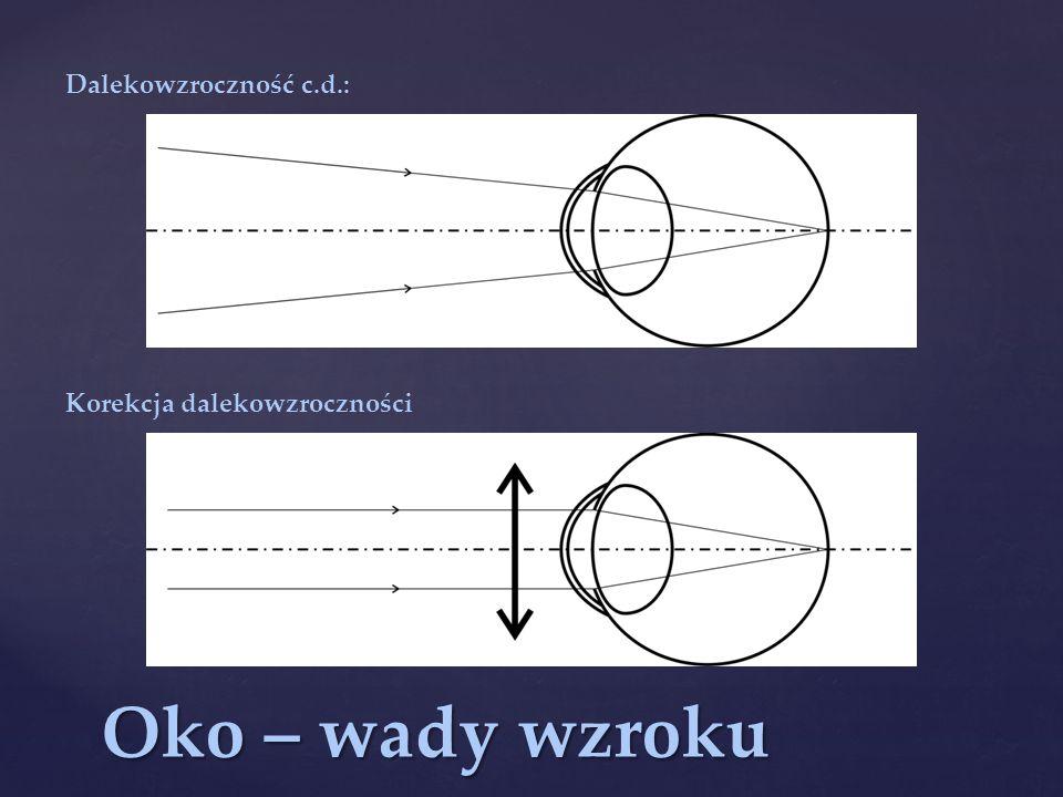Dalekowzroczność c.d.: Korekcja dalekowzroczności Oko – wady wzroku