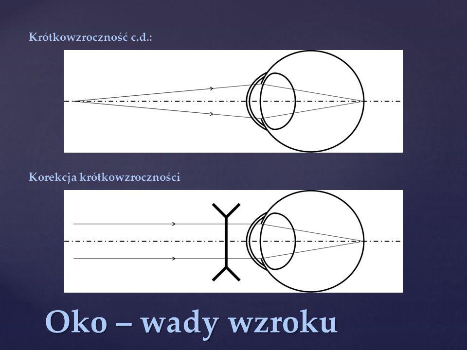 Krótkowzroczność c.d.: Korekcja krótkowzroczności Oko – wady wzroku