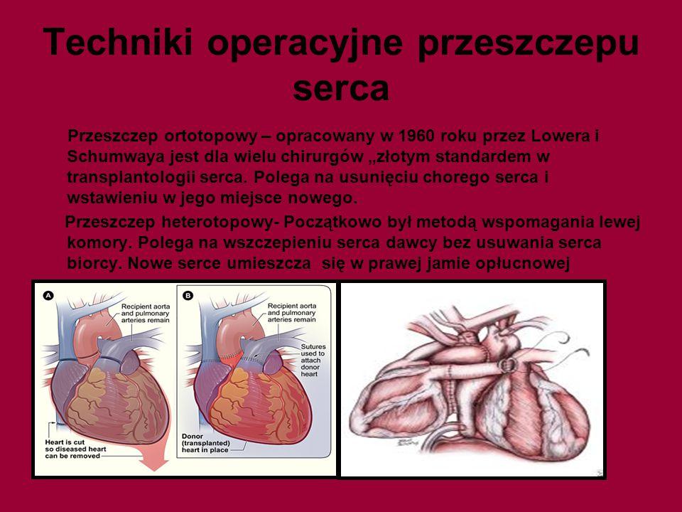 Techniki operacyjne przeszczepu serca